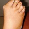 Артрит пальця ноги: причини, симптоми