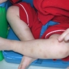 Підвищені тромбоцити у дитини: які можуть бути причини?