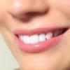 Процедура відбілювання зубів: відгуки та рекомендації