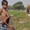 В Індії народився хлопчик-павук: правда чи вигадка?