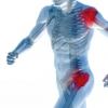 Захворювання, при яких виникає запалення кісток